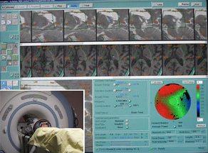 sound-wave-brain-surgery-thumb-550x407-21181